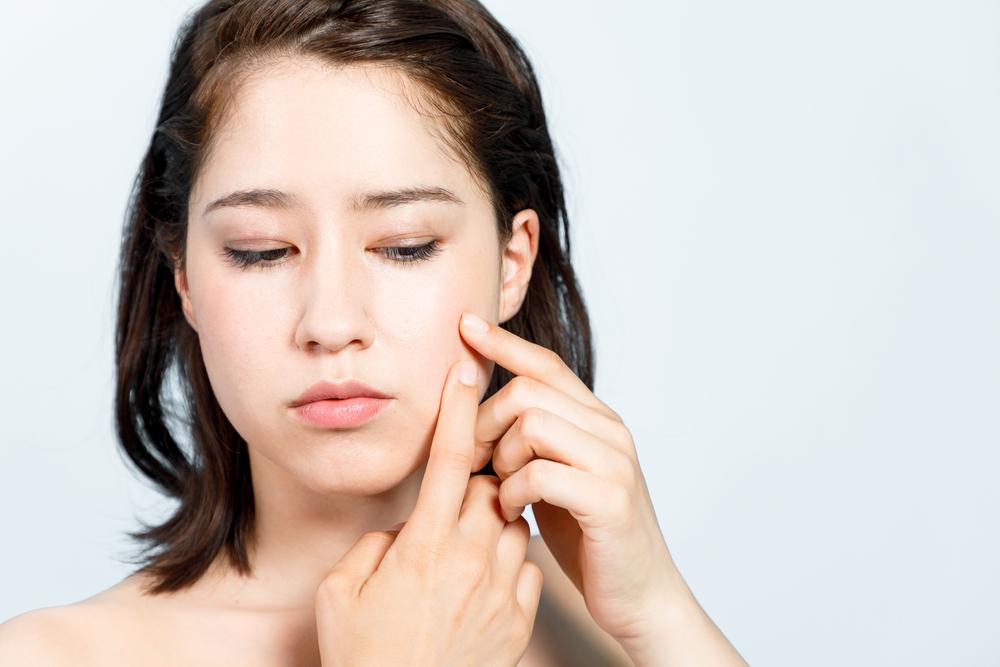 rossz haj piszkos szokások okoznak akne