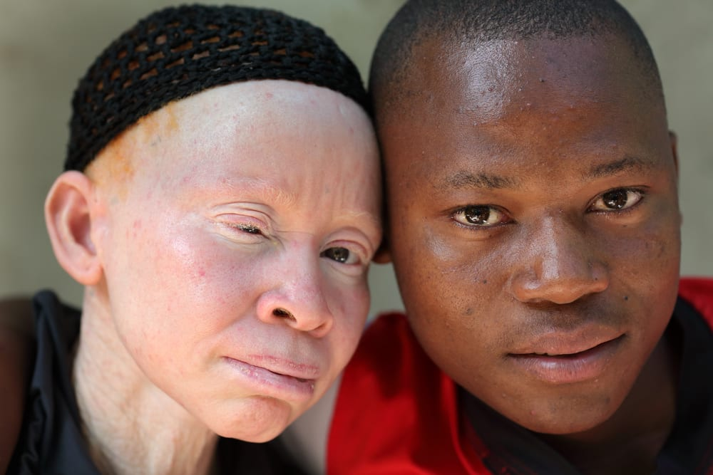 Albinizmus az emberekben